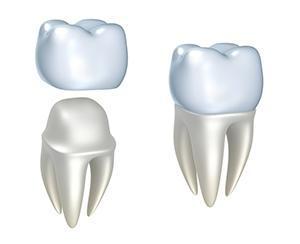 Dental Crowns Replace Broken Teeth