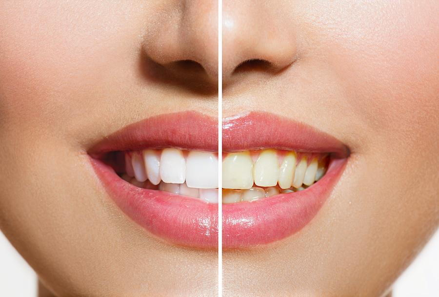 Teeth Whitening in Norfolk, MA